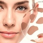 Brown spots: why appear and how to treat