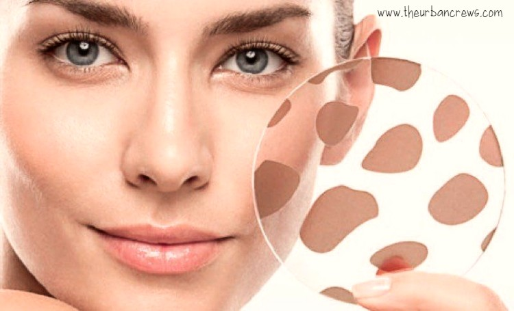 Brown spots: why they appear and how to treat them?
